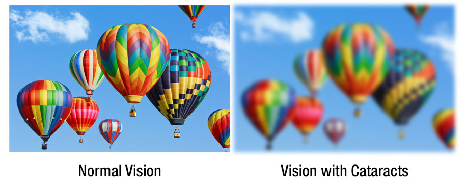 A graphic showing normal vision versus vision with cataracts